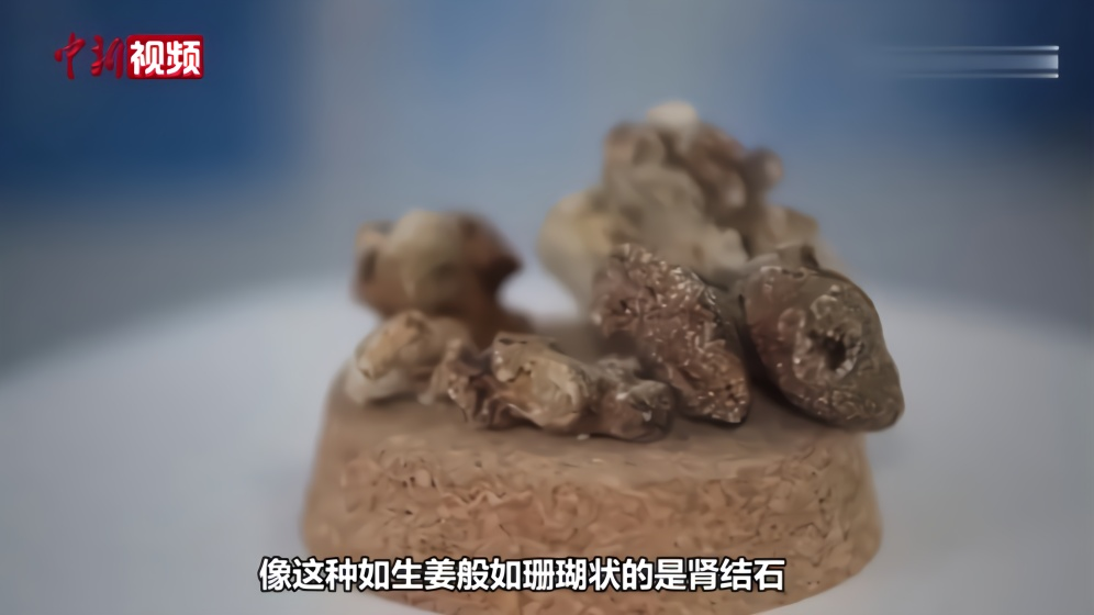 """湖北宜昌现""""结石奇石馆"""""""