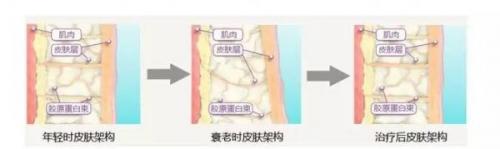 蒂蔻兰嘉正确护肤方法|医美术后怎样护肤?看这一篇就对了