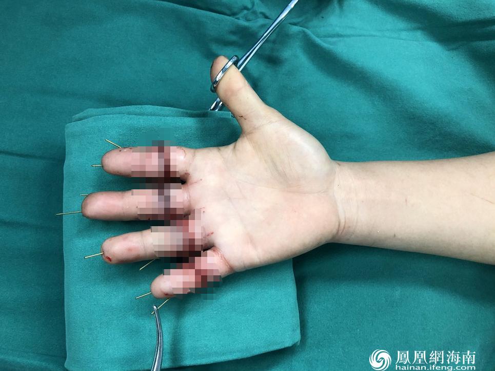 手指 手足 外科 患者 右手 团队 血管 通宵|经过海医二院手术团队一个通宵努力 折弯机离断四指一一再植成功