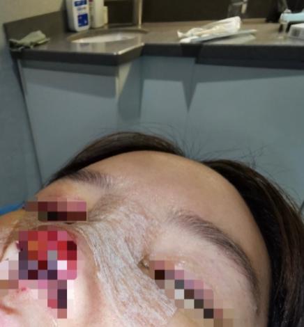 高溜的術后照片,鼻子反復發炎