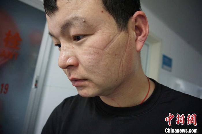 摘下口罩的平国华宁波疾控中心供图摄