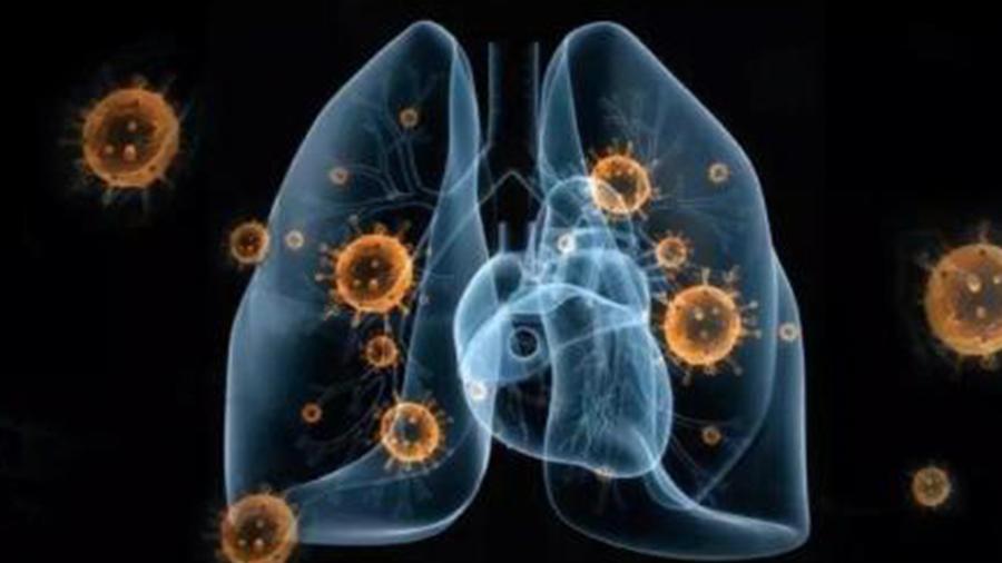 新冠病毒会长期存在吗?复旦大学教授分析
