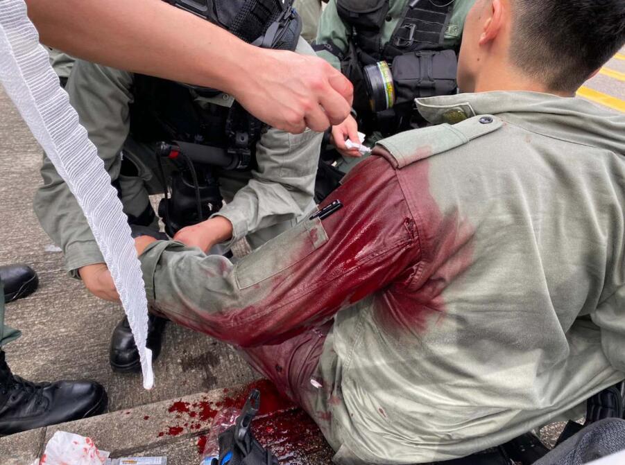 【西安一多秀直播大厅优化】_暴徒刺伤港警后连夜潜逃,遭亲友举报在机场被拘