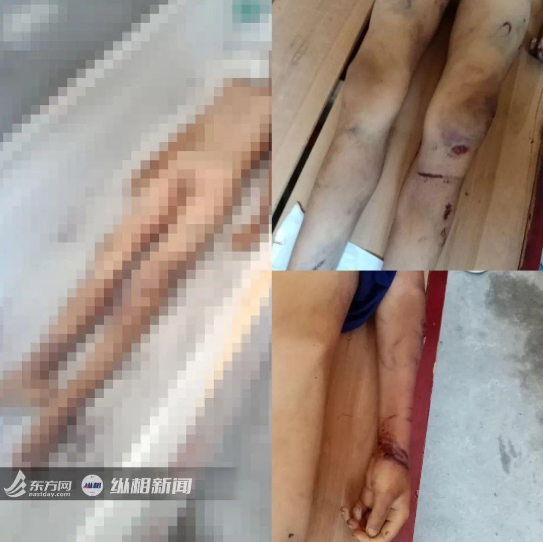 【永济网】_江西12岁男童满身伤痕惨死家中 父母被拘还牵出8年前卖孩案