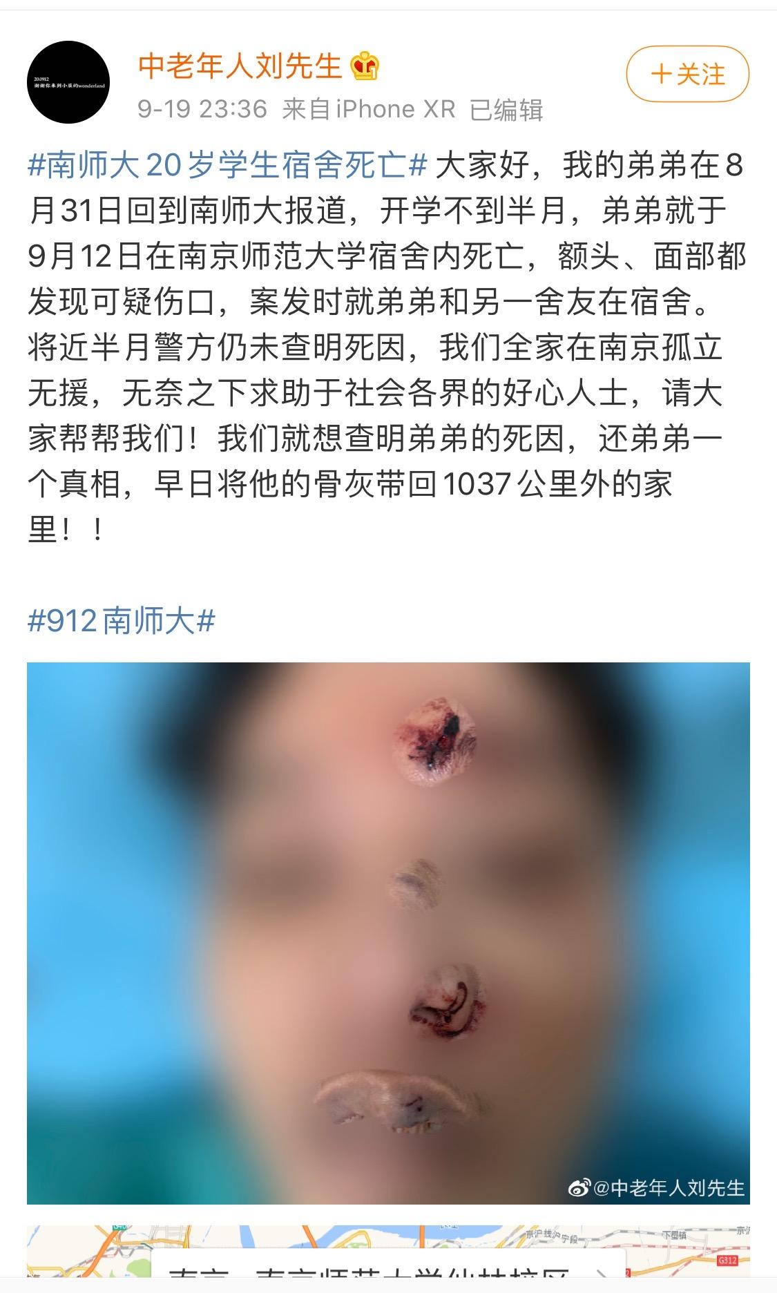 南京一大学生宿舍内死亡,被曝面部有不明伤口,警方介入调查