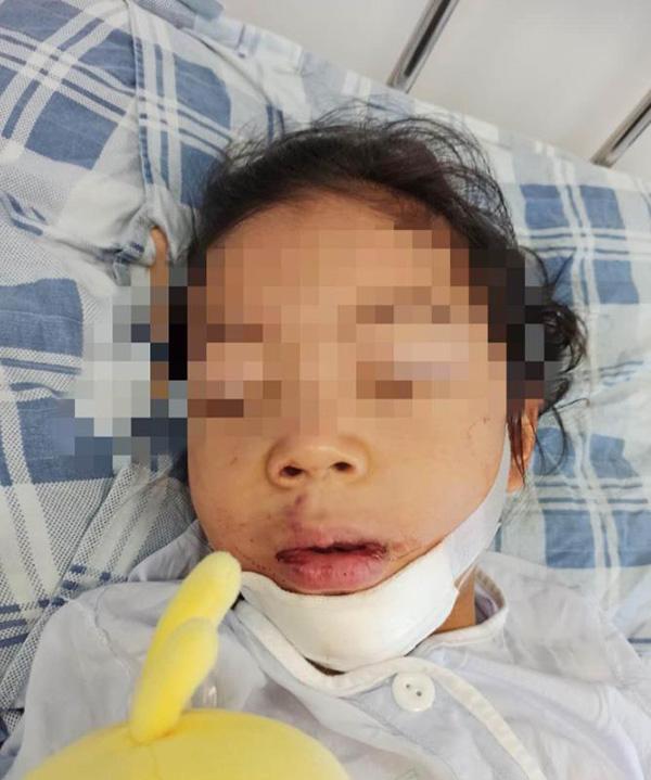 小萍经医院诊断下巴处受伤严重