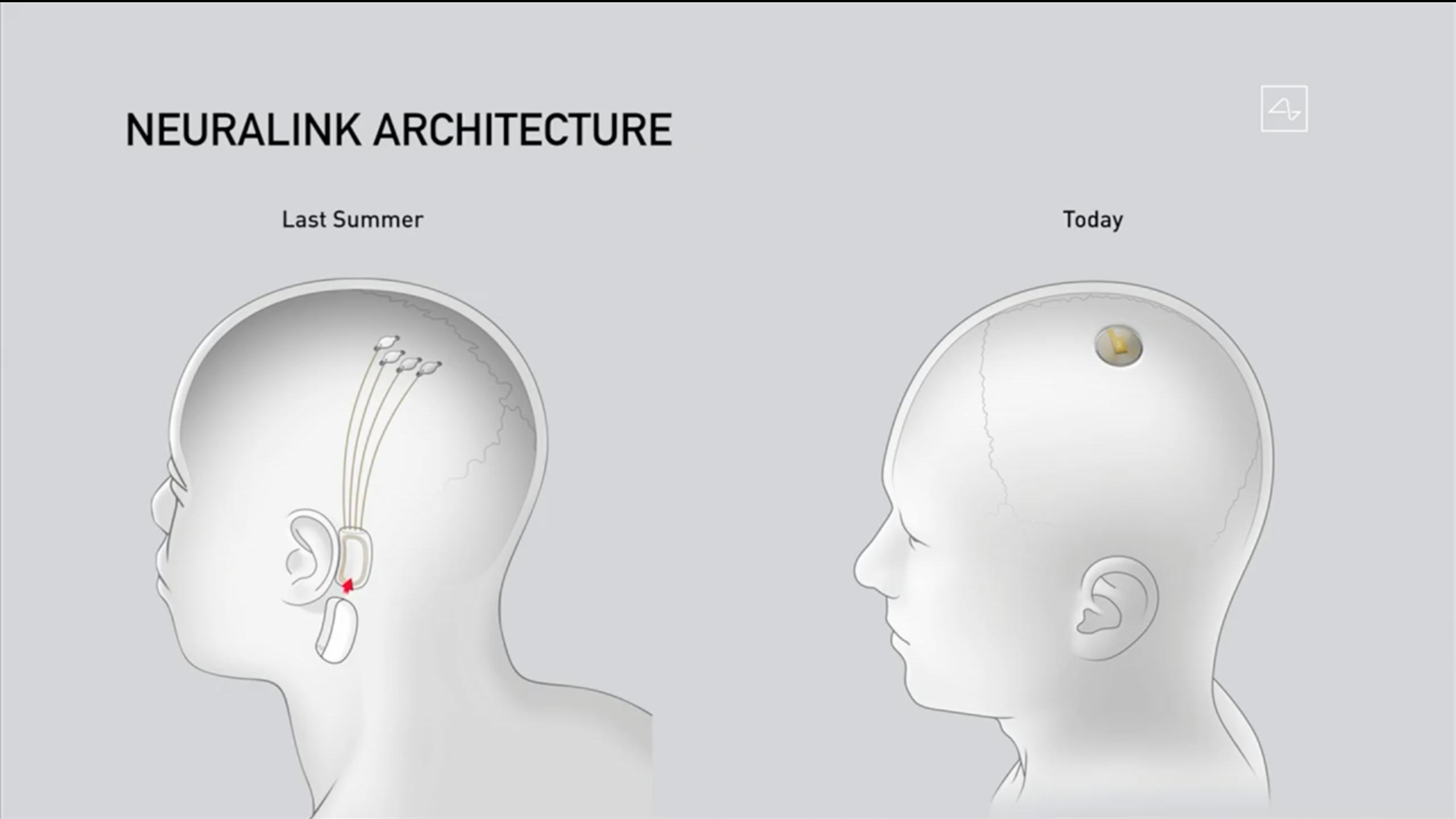 2019年展示的设备位于耳后(左),右侧为最新设备