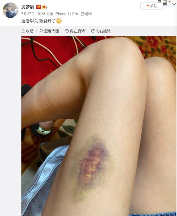 杜海涛悔婚7天后,沈梦辰崩溃自曝患怪病 她到底经历了什么? 健康 第22张