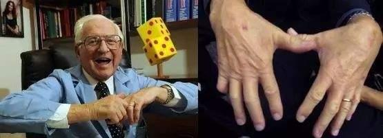 """手指掰得""""咔咔"""",心里爽了离关节炎也不远了? 健康 第2张"""