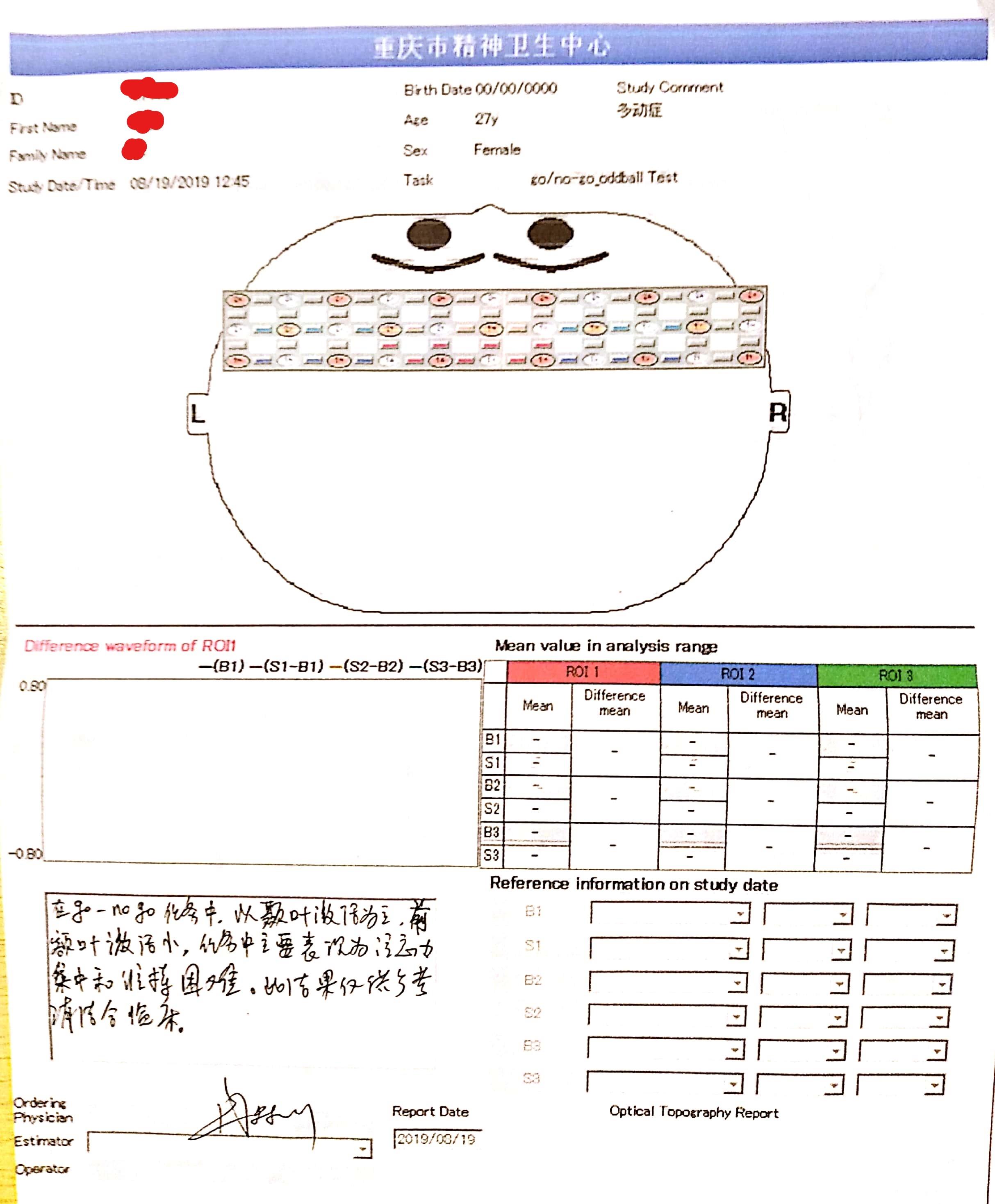 陈盈的脑电图显示前额叶激活小,注意力集中和衔接困难。