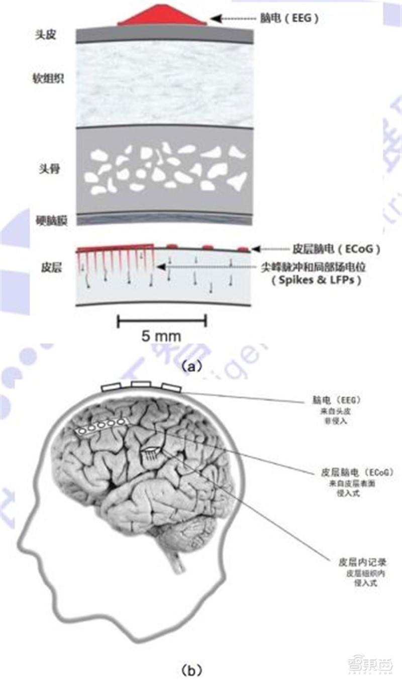 脑机接口破圈医疗!对五种疾病或有奇效,难怪马斯克吹爆|智东西内参
