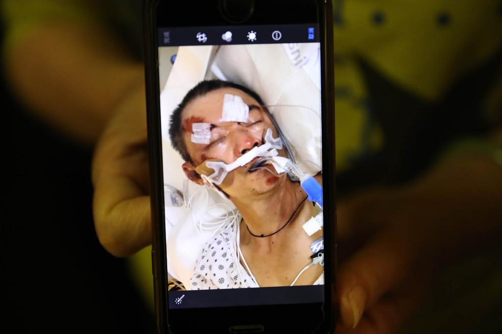 美国61岁华人捡易拉罐为生被打昏迷,头部遭狂踩,妻子哭诉(图5)