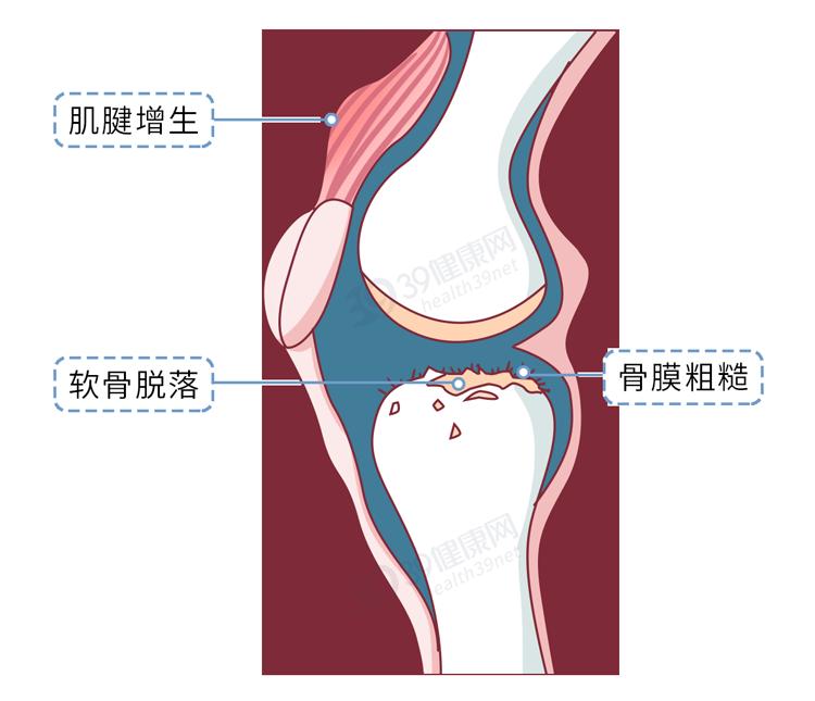 膝盖一转就响,可能是瘫痪前兆 健康 第13张