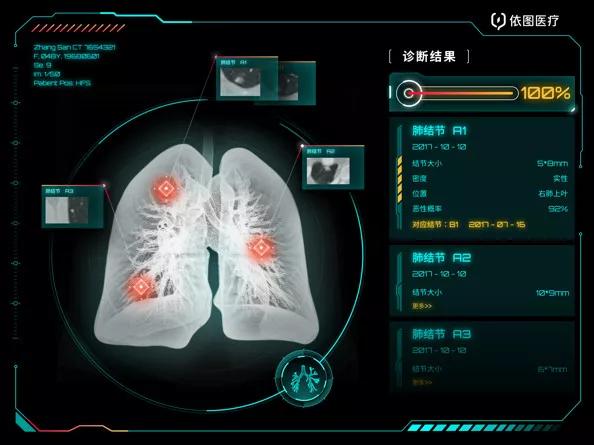 贵港市人民医院引进肺结节人工智能(AI)软件,肺结节无处藏身