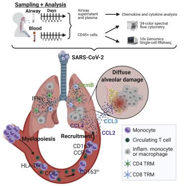 """研究称COVID-19重症患者的肺部细胞因子""""飓风""""吸引了有害的炎症细胞 炎症细胞因子"""