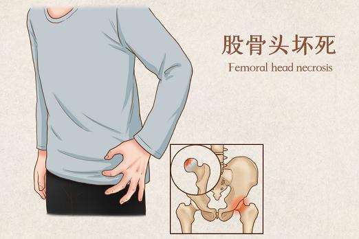 股骨头坏死怎么办,复方生脉成骨方回答您!