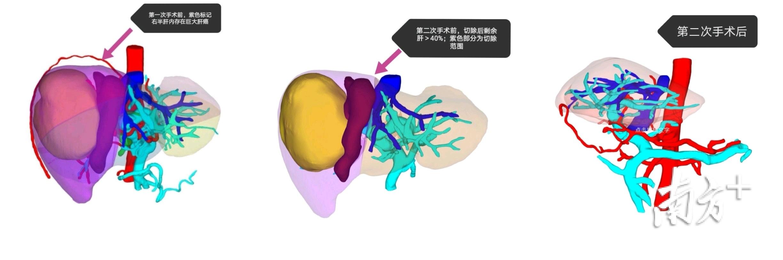 深圳首家!深大总医院引进全球领先肝癌人工智能AI临床决策系统