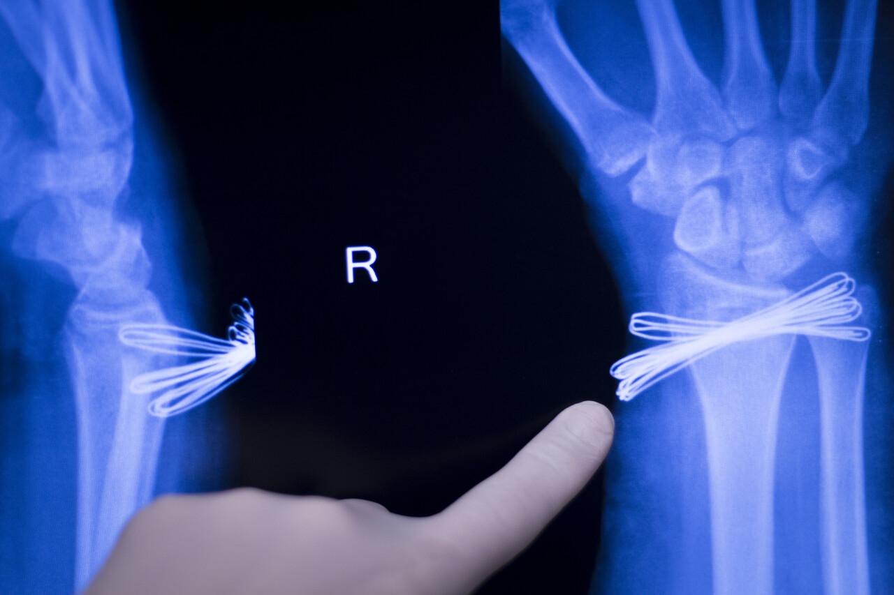 骨科人工智能与手术机器人公司长木谷完成1.2亿元Pre-B轮融资