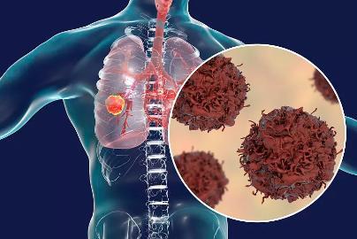 贝壳创始人左晖肺癌去世,肺癌到底有多凶险?
