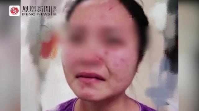 外籍新冠肺炎患者殴打咬伤广州一名女护士 警方回应