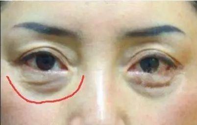 凤凰网梧桐汇商城|眼袋是女性的天敌,有眼袋眼纹,显老不止10岁