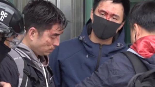 令人发指!香港警员遭暴徒围殴 头破血流