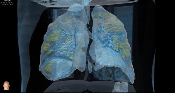大夫带你看新冠病毒侵蚀后的肺部:损伤超乎想象!(视频)