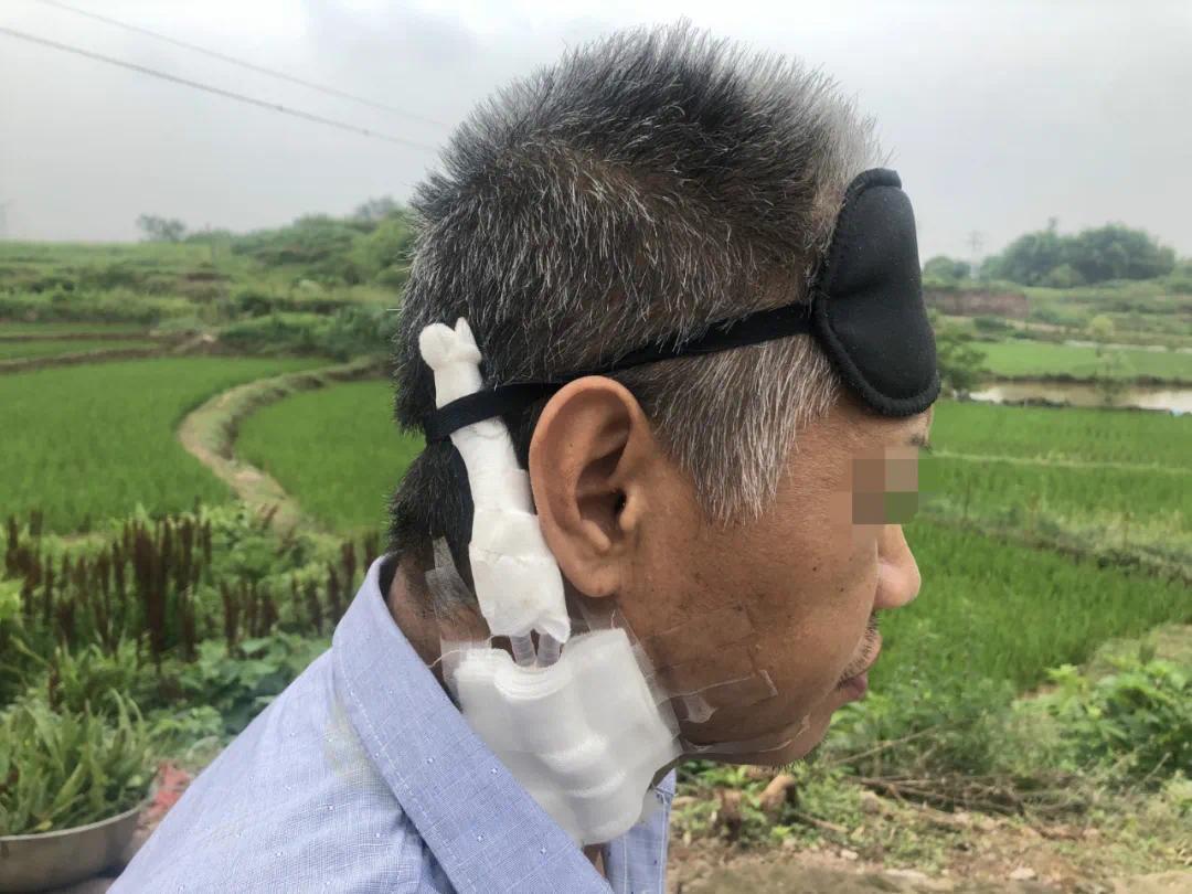 ▲右颈部的留置导管,是身患尿毒症的廖银超血液透析的生命通路。新京报记者杜雯雯 摄