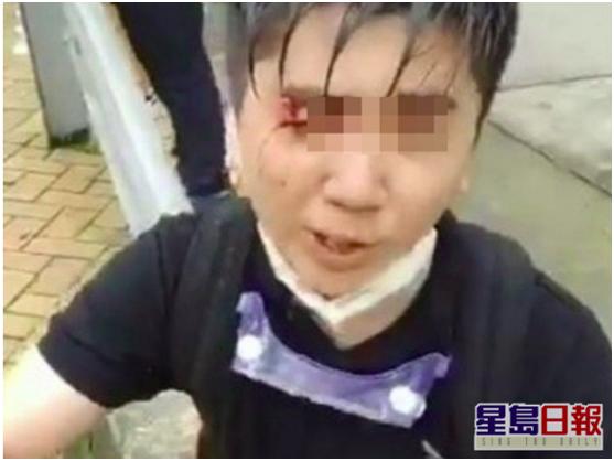 【外贸网络推广】_暴力冲击香港警方防线教师 未获学校续约