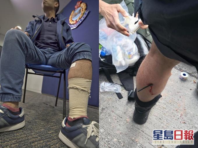 去年,有警员在理大附近被暴徒持箭射中小腿(图片来源:《星岛日报》)