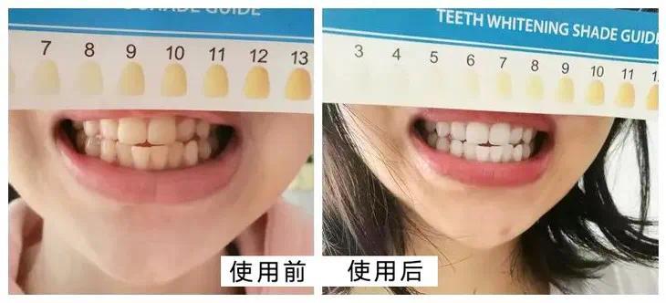 凤凰网梧桐汇商城|牙黄毁所有!用它刷牙,甩掉牙渍刷出小白牙