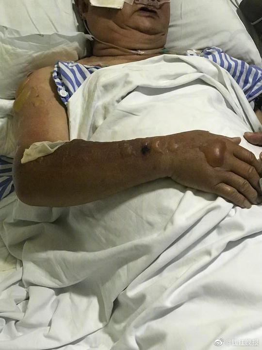 【深圳人与曽200部视频】_杭州78岁大伯摔了一跤躺在地上,被烫成浅二度烧伤