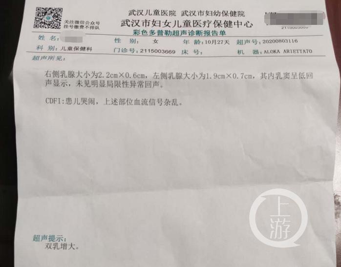 【搜索引擎营销案例】_武汉不满一岁女婴提前发育双乳增大,家属申请鉴定奶粉质量