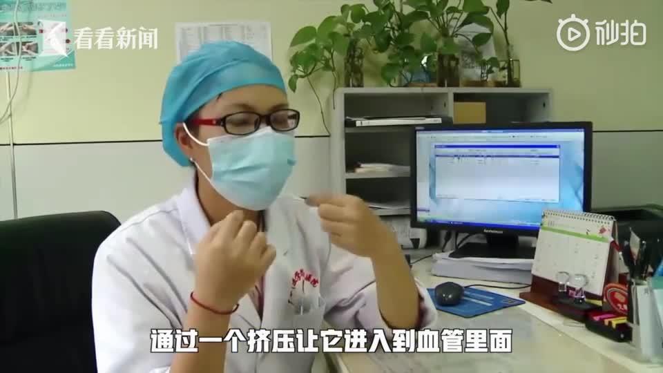 19岁女孩挤痘痘引发颅内感染