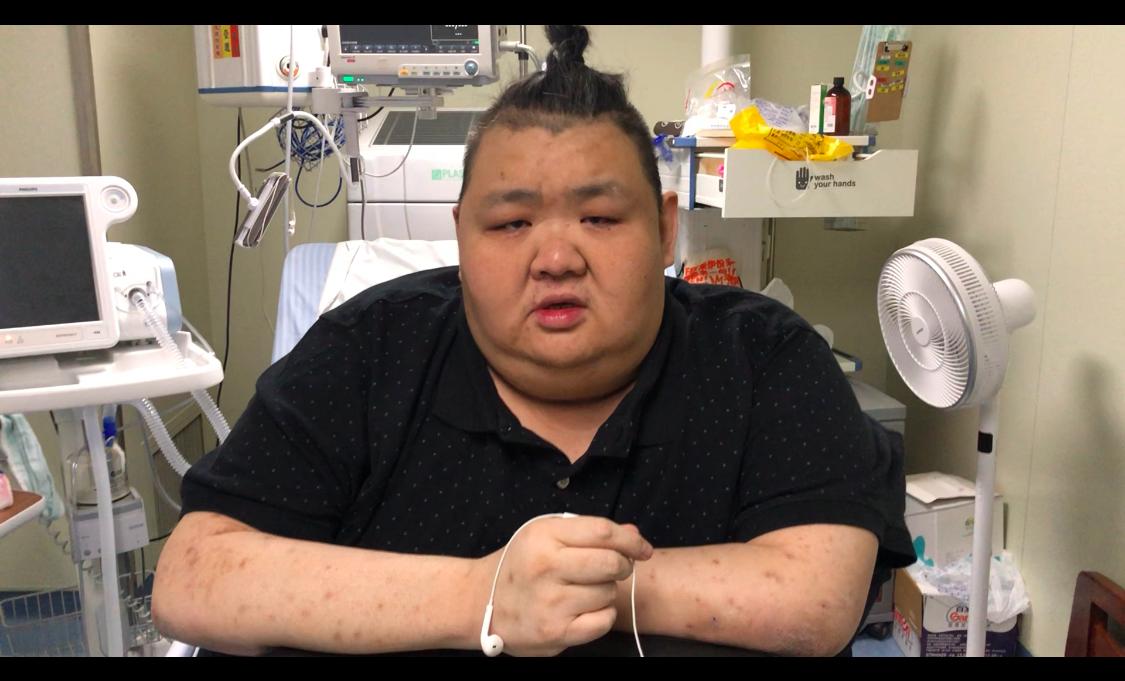 胖先生手术前经历了长达三个月的准备期。上海电视台新闻综合频道《新闻坊》记者陈涛提供