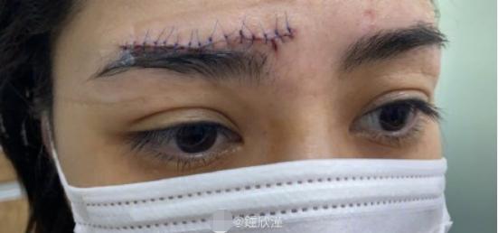 阿娇首次曝光头部伤口细节,眉骨上方缝了十几针