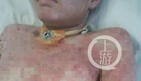 19岁外卖小哥吕洋洋在逃离火灾过程中全身多发烧伤。/受访者供图