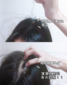 怎样治疗脱发?奉上我的避雷指南