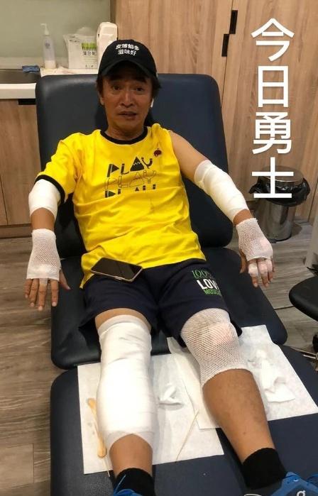 吴宗宪录节目意外受伤 四肢挫伤并将进行脑部检查