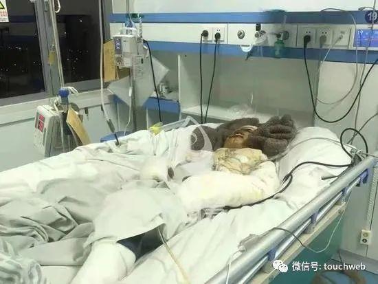 骑手刘师傅在医院等待清创手术