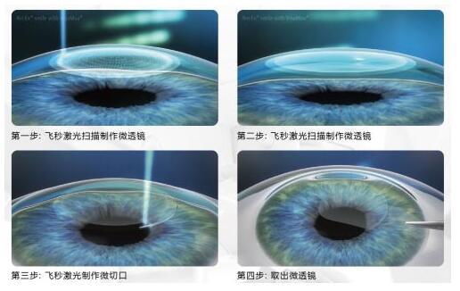 近视手术,近视激光手术,珠海近视手术医院
