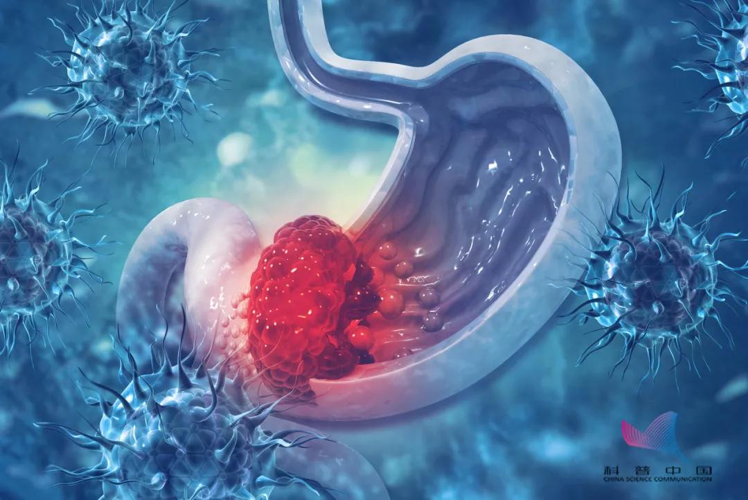 为啥胃癌越来越年轻化?医生:因为这些坏习惯