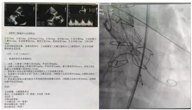 省内首例!齐鲁医院完成局麻下经导管主动脉瓣植入术