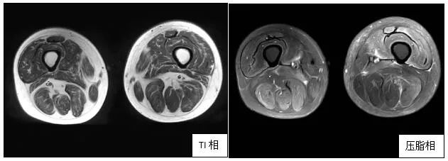 肌肉磁共振(2021年1月14日)显示患者双大腿肌肉较前明显恢复