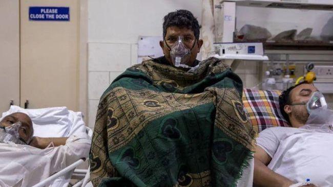 """印度爆發比新冠更可怕的并發病!患者面部""""發霉"""",需摘除眼球求生"""