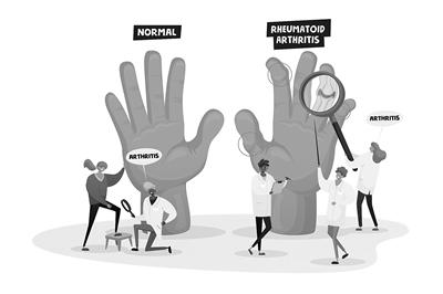 手指畸形一定是类风湿关节炎作怪吗?