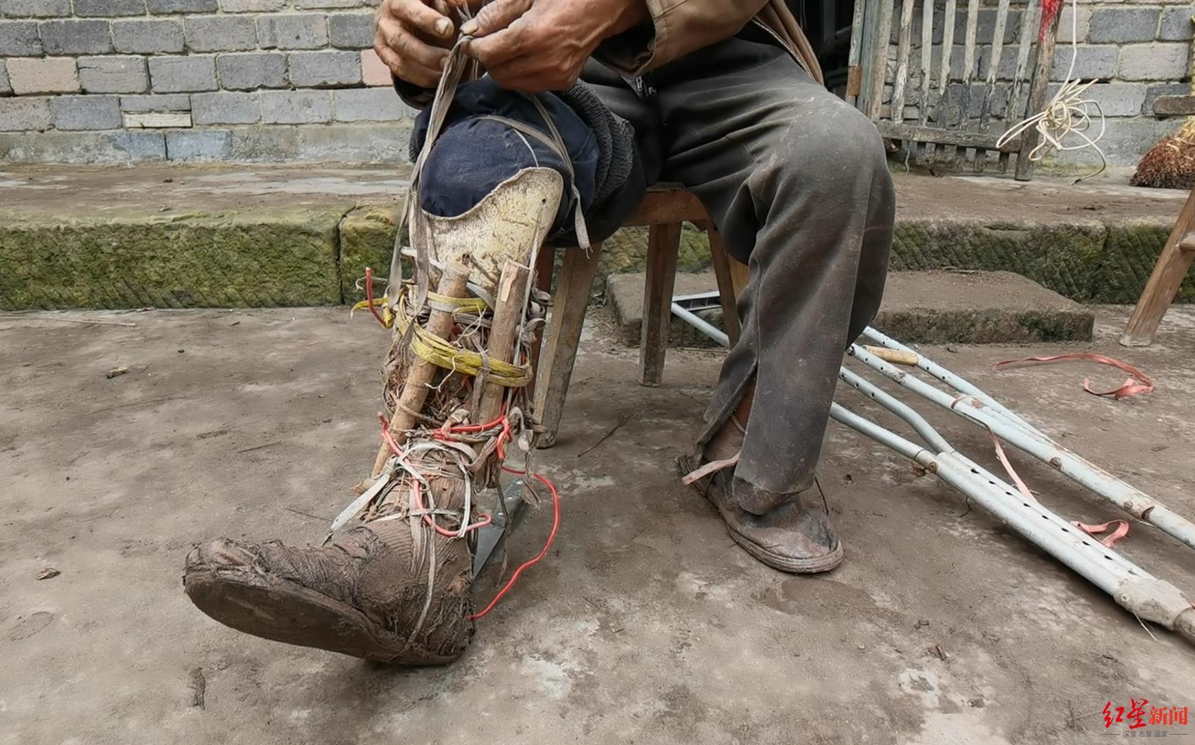 敖大爺穿戴自制加固的假肢